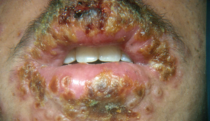 Orofacial HSV infections affect 15% to 30% of the population. This photo shows a primary outbreak of herpes simplex around the mouth. Primary infections can range from subclinical to severe, with fever, headache, malaise, anorexia, pain, lymphadenopathy and edema. Secondary infections are usually milder.