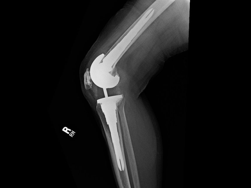 Lateral X-ray.