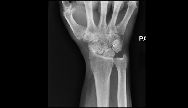 Anterior-posterior x-ray of the patient's wrist