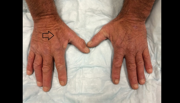 Muscle atrophy to the first dorsal web space is indicated by the arrow on a man's right hand that is experiencing progressive weakness.