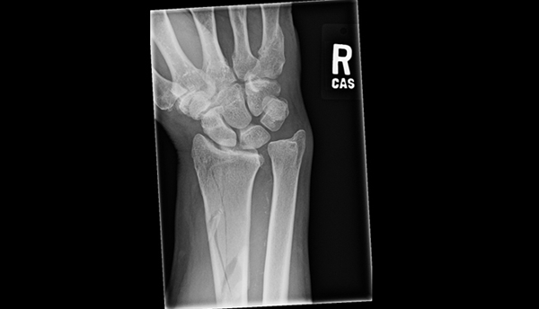 Anteroposterior x-ray of a 67-year-old man's right wrist injured during a snowmobiling accident.