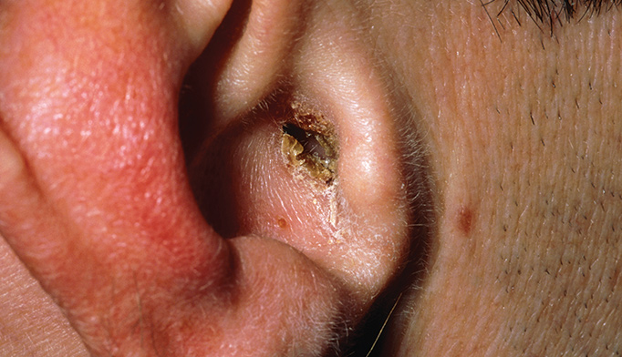 Treating antifungal-resistant ear infection?s