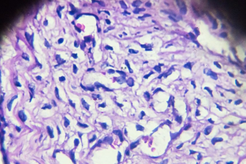 Quantitative Image Marker Beneficial for Identifying Response to Postsurgical Chemotherapy