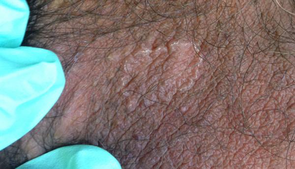 Sack bumps on scrotum Ingrown Hair