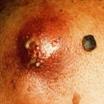 A carbuncle is a contagious skin infection that often involves a group of hair follicles, often caused by the bacteria S. aureus. The infected material forms a lump, called mass, which occurs deep in the skin. The infected mass is filled with fluid, pus and dead tissue. Fluid may drain out of the carbuncle, but sometimes the mass is so deep that it cannot drain on its own. Photo Credit: John Watney / Photo Researchers, Inc.