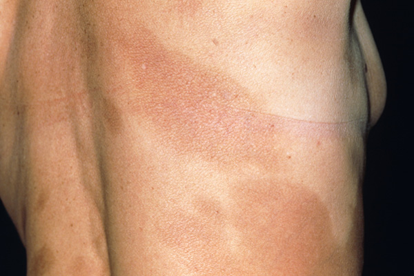 The torso of a 59-year-old woman with morphea, a type of scleroderma. Morphea is characterized by hard flat white or reddish skin patches, oval to round in shape that can measure several centimeters in diameter. The disorder most often affects middle-aged women. Morphea is harmless, but may be unsightly. There is no treatment. Photo credit: Dr. P. Marazzi / Photo Researchers, Inc.