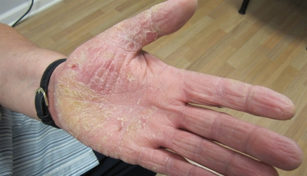 Scaling rash on the palms - Clinical Advisor