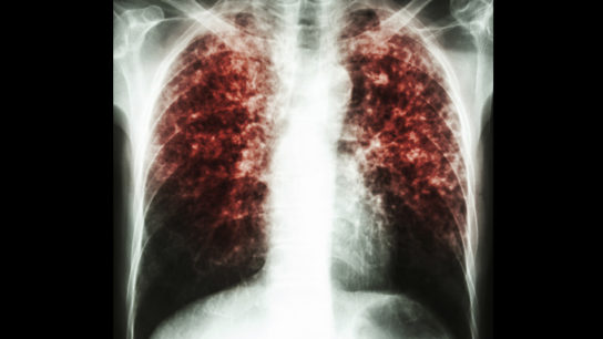 pulmonary tuberculosis infection