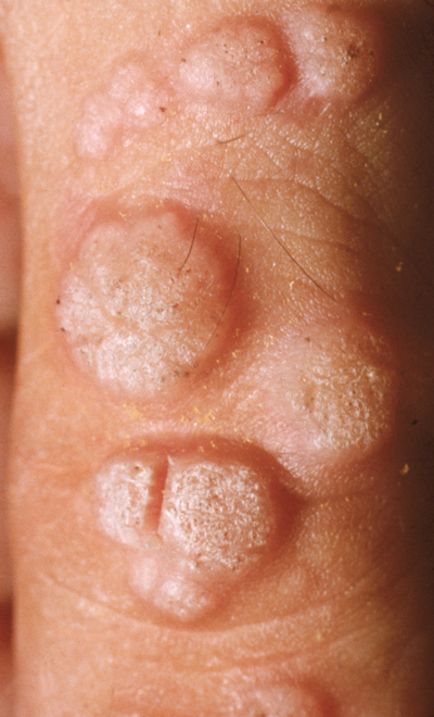 the common wart, or verruca vulgaris, is caused by the human papillomavirus