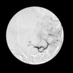 Clinicians should be aware of the uncertainty regarding benefit of administering t-PA more than 3 ho