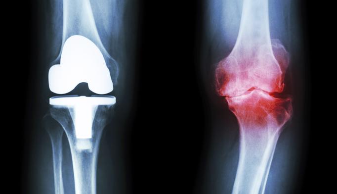 total-knee-arthroplasty-replacement-CA0516.jpg