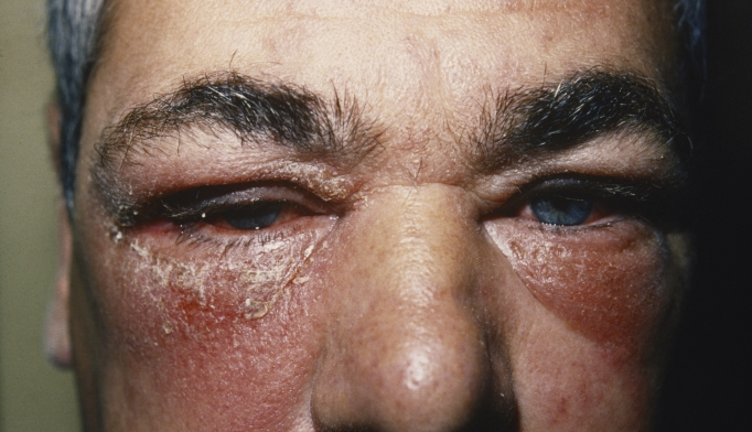 Itchy red rash and periorbital swelling - Clinical Advisor