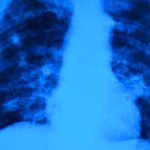 FDA approves Sirturo for MDR-TB