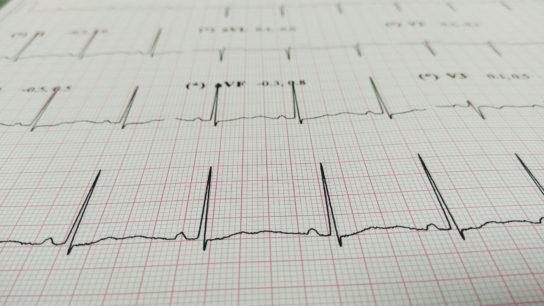 electrocardiogram chart, ECG