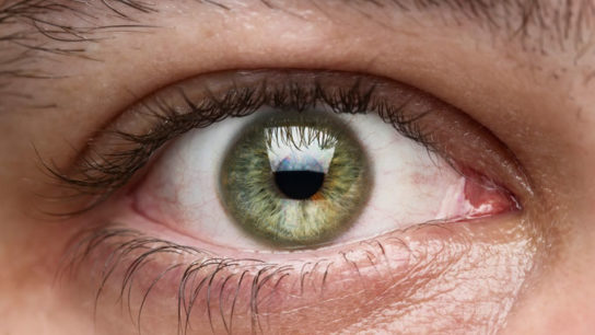 Retinal thinning may correspond with MS progression