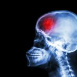 Moderate optimism may improve depression risk in women who have a stroke