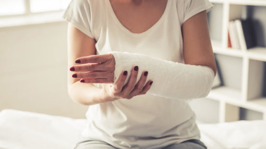 woman with fractured arm